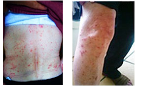 FULL BODY PSORIASIS Permanently healed in 4 treatments